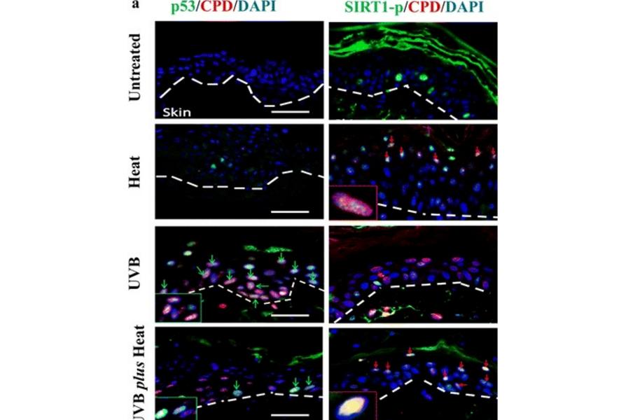 UVB treatment of skin models Caliper et al.