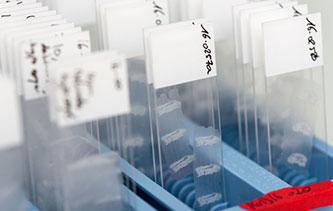 Slides HistoSkin® FFPE skin tissue sections