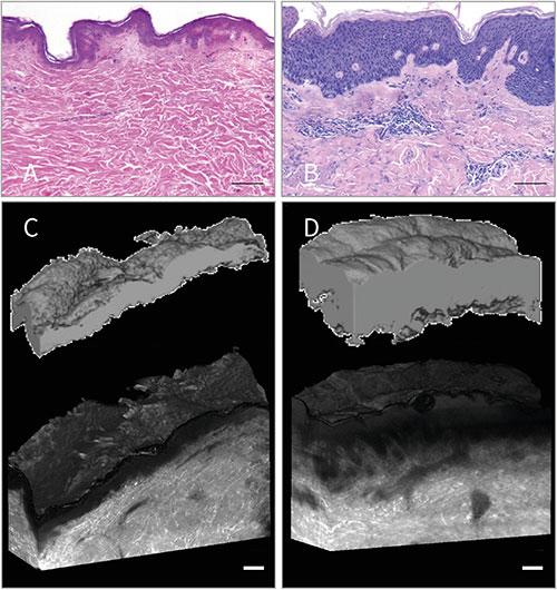 Imaging quantification of epidermal hyperplasia