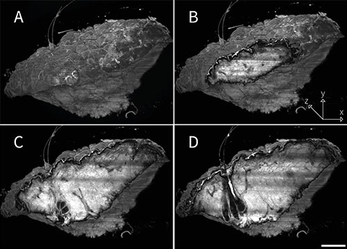 Four 3D images of skin biopsy with light sheet fluorescence microscopy