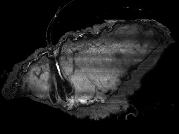 LSFM 3D imaging of a full-thickness skin biopsy