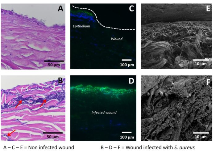 histological analysis of infected wounds