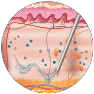 in situ mast cells degranulation